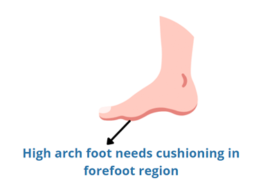 too high arches need cushioning under forefoot